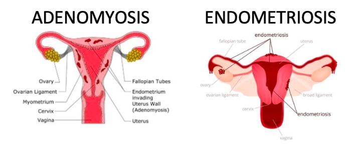 Adenomyosis versus endometriosis