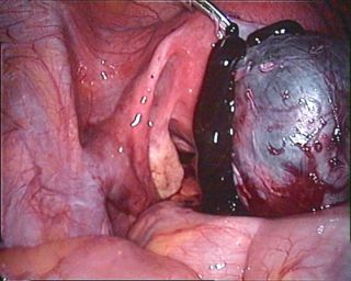 Ovarian chocolate cyst