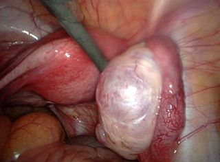 ovarian endometriosis
