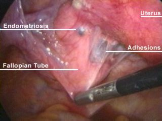 Pictures of endometriosis
