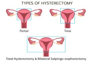 Endometriosis and hysterectomy