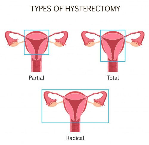 hysterectomy types