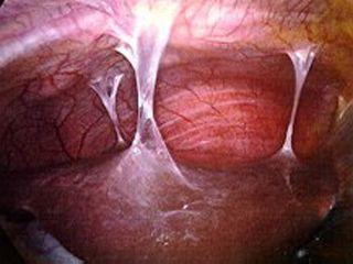 Endometriosis adhesions