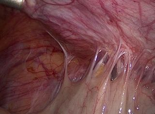 Dense endometriosis adhesions