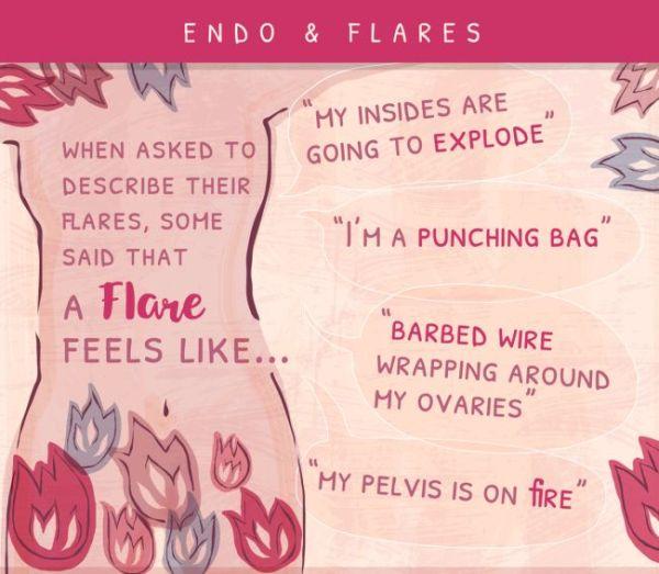 Endometriosis flare symptoms